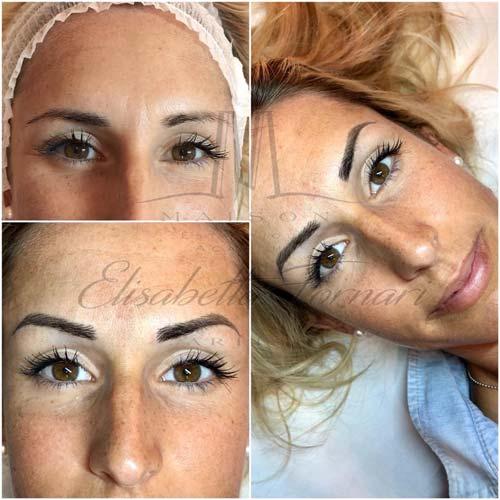 Prima e dopo intervento di trucco tatuato